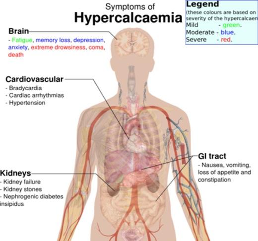 1-hypercalcaemia-05